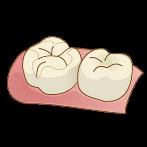 銀歯を除したイラスト