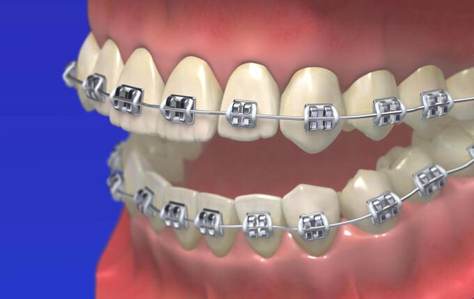 矯正歯科治療中
